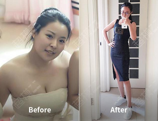 完美处女座的23斤减重史